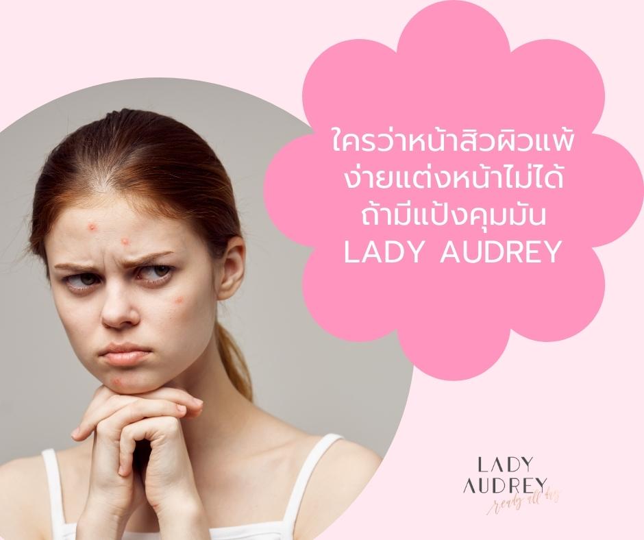 ใครว่าหน้าสิวผิวแพ้ง่ายแต่งหน้าไม่ได้ ถ้ามีแป้งคุมมัน Lady Audrey (1)